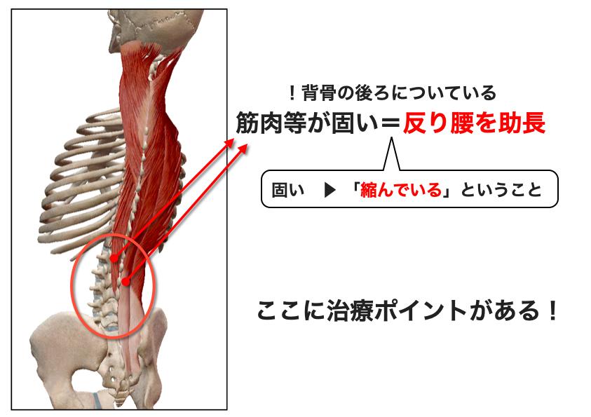 腰の筋肉固いと反り腰になる