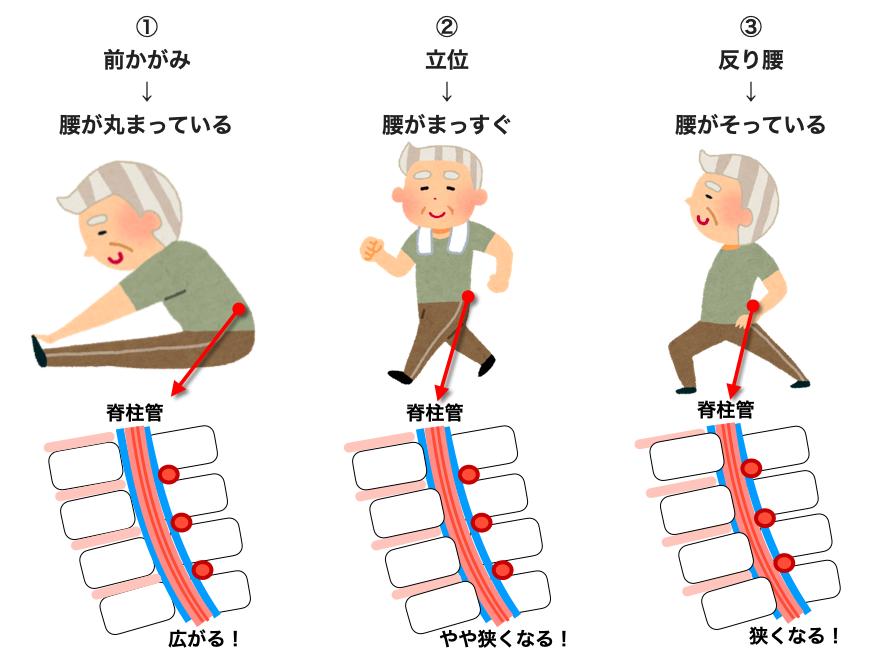 前かがみ 立位 反り腰の脊柱管の様子